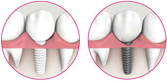 System image comparison ceramic implant and metal implant
